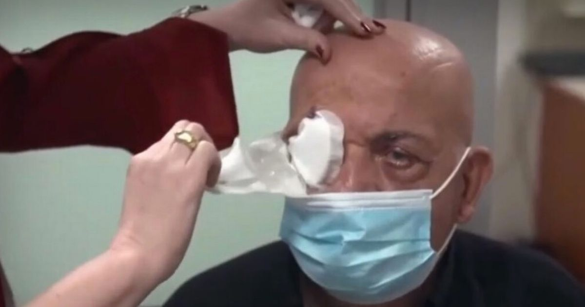 Moment blind man sees for first time in 10 years using artificial cornea